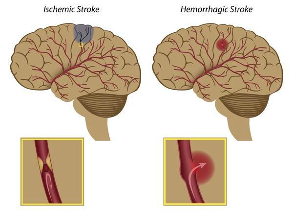Accidentul vascular cerebral acut – urgență medicală majoră