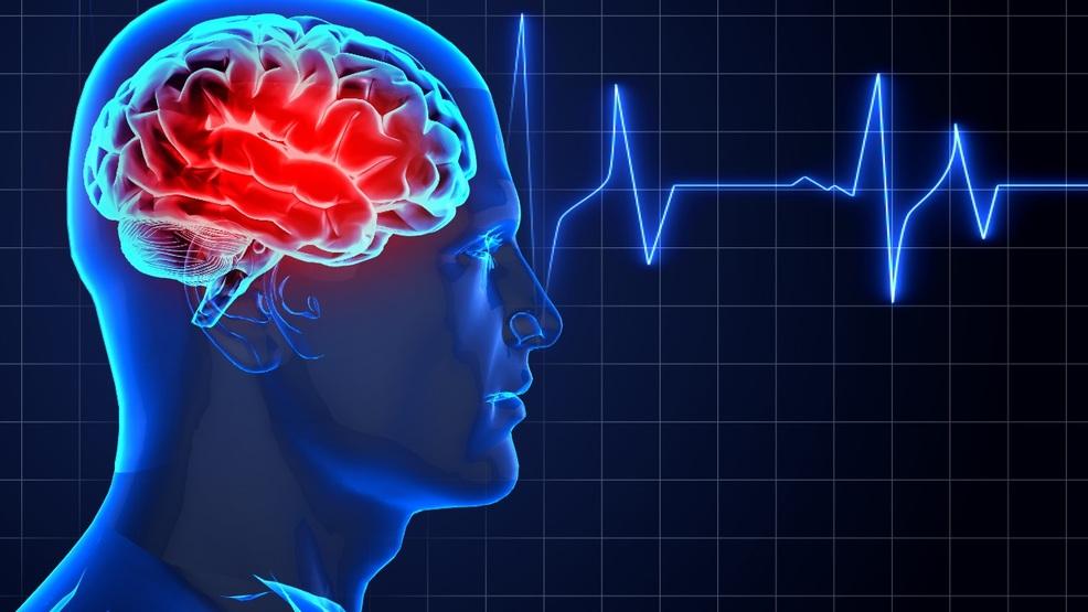 Mesajul CNAMUP-ului către cetățeni cu ocazia Zilei Mondiale de Luptă împotriva accidentului vascular cerebral